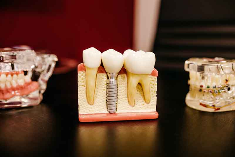 healthysketch Sedation Dentistry