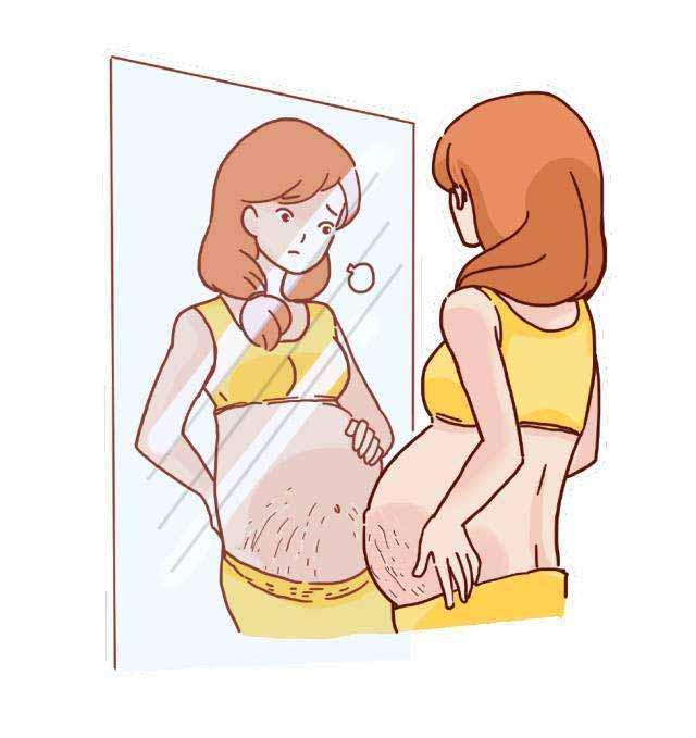 pregnant stretch marks